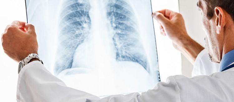 """Domani al via """"PneumoSalerno 2019"""" dedicato alla valutazione e gestione del paziente con patologie respiratorie"""