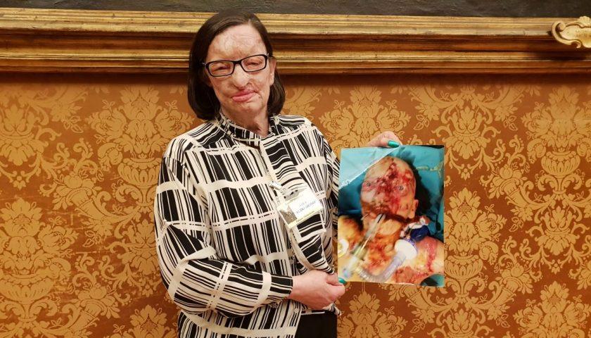 Sfregiata con l'acido dal marito, la cavese Filomena Lamberti premiata a Santa Maria Capua Vetere