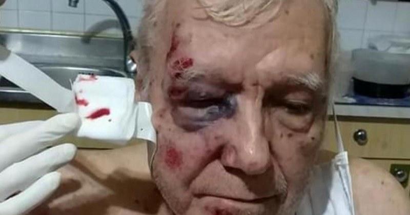 Presunto pestaggio a un anziano a Nocera Inferiore, 83enne al Cardarelli