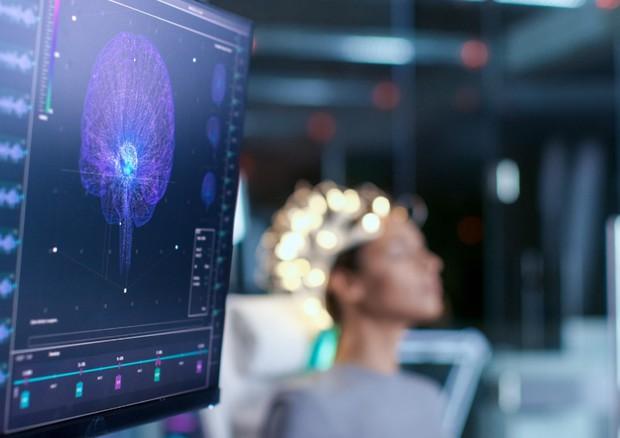 Cefalea e smart working, impatto psicologico può pesare